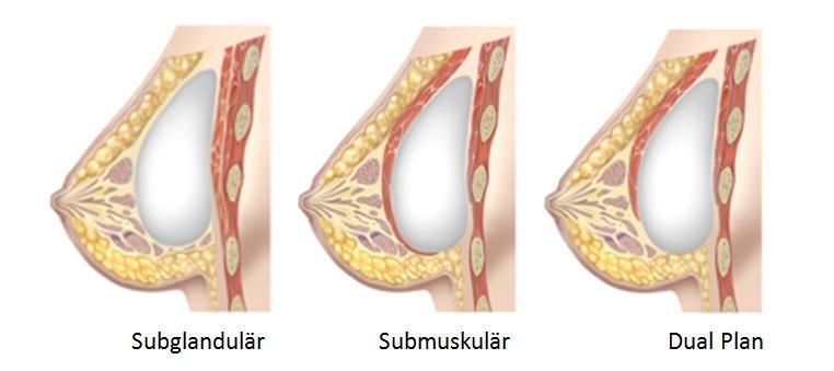 Brustvergrößerung Implantatlagen